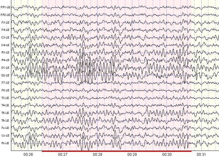 A normal EEG